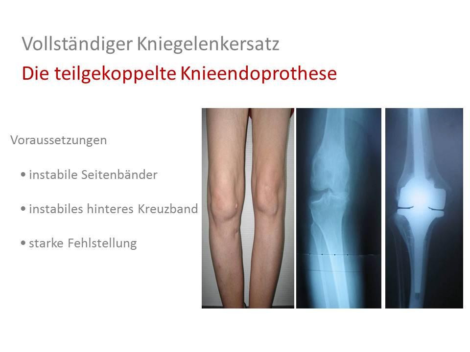 Charmant Zerrissene Laterale Seitenband Knie Bilder - Menschliche ...
